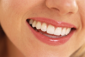 Girl Smiling For Low Cost Dental Teeth Whitening - Home Remedies