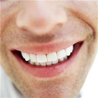 whitening - is it covered by dental insurance