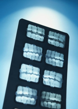 affordable dental care needed for body health