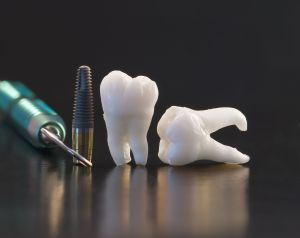 Dental Insurance For Dental Implants