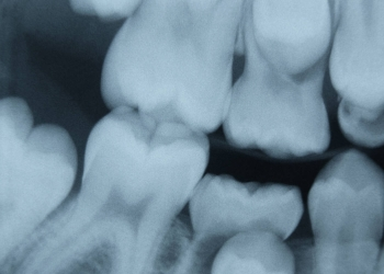 Xrays for Cheap Dental Care Opportunities